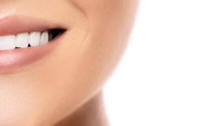 ¿Cuáles son las ventajas de las carillas dentales?
